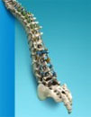 APEX Deformity Spine System